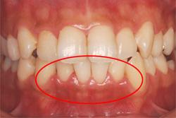 治療 歯肉 炎