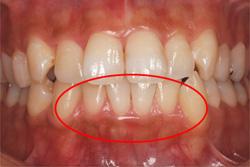 炎 治療 歯肉 歯肉炎とは?歯茎が腫れる原因と症状・自宅で治す方法